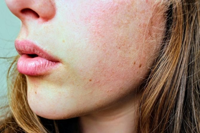 Signs of Sensitive Skin