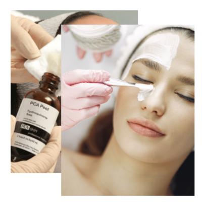 PCA Ultra Peel available at Body Balance Massage & Skincare Spa