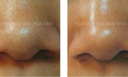 Pore Detoxyfying Treatment | Body Balance Massage and Skincare Spa